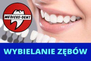 Medicus Dent Opole - wybielanie zębów